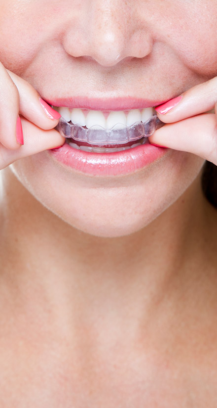Invisalign Timberlands Dental Care in Red Deer
