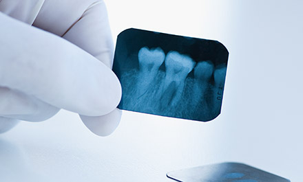 Root Canal Therapy Timberlands Dental Care Burnaby